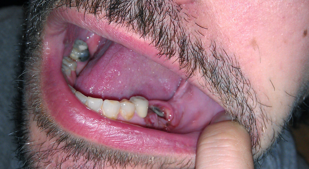 When you should Have A Tooth Extraction